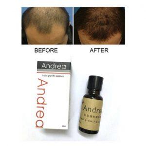 Andrea Andrea Hair Growth Oil discuntxhub