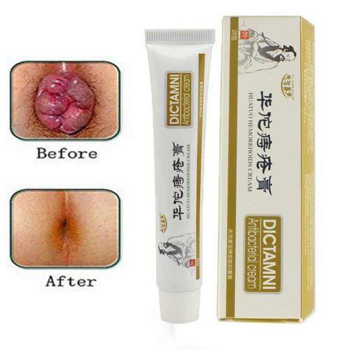 Dictamni Powerful Chinese Hemorrhoid Pile Cream discountshub